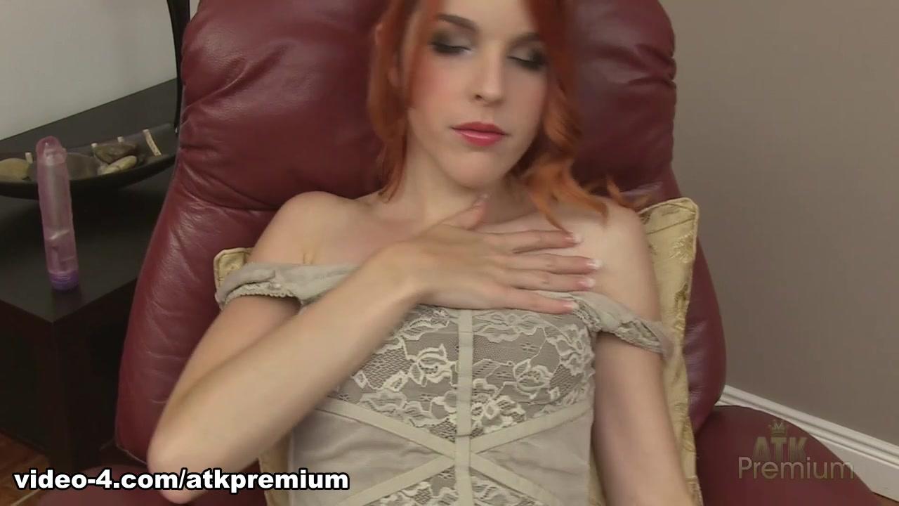 Esotropia online dating Hot Nude