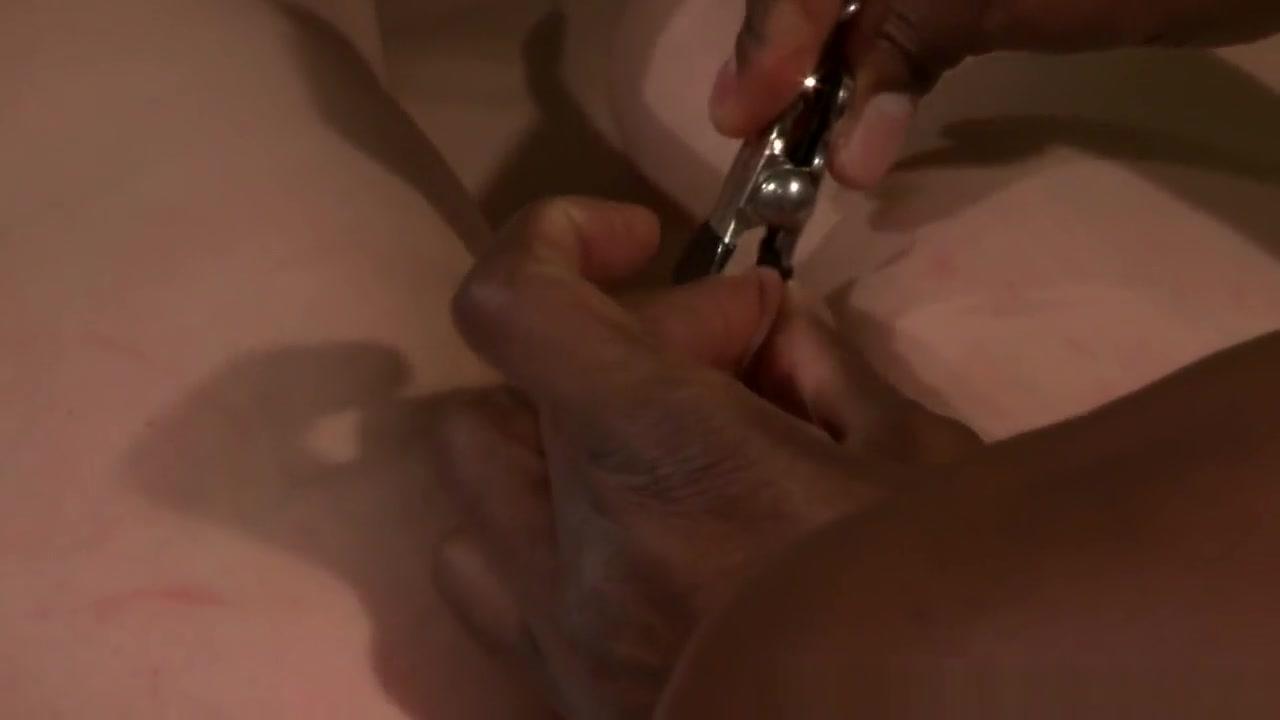 Suki bio resurfacing facial peel Adult sex Galleries